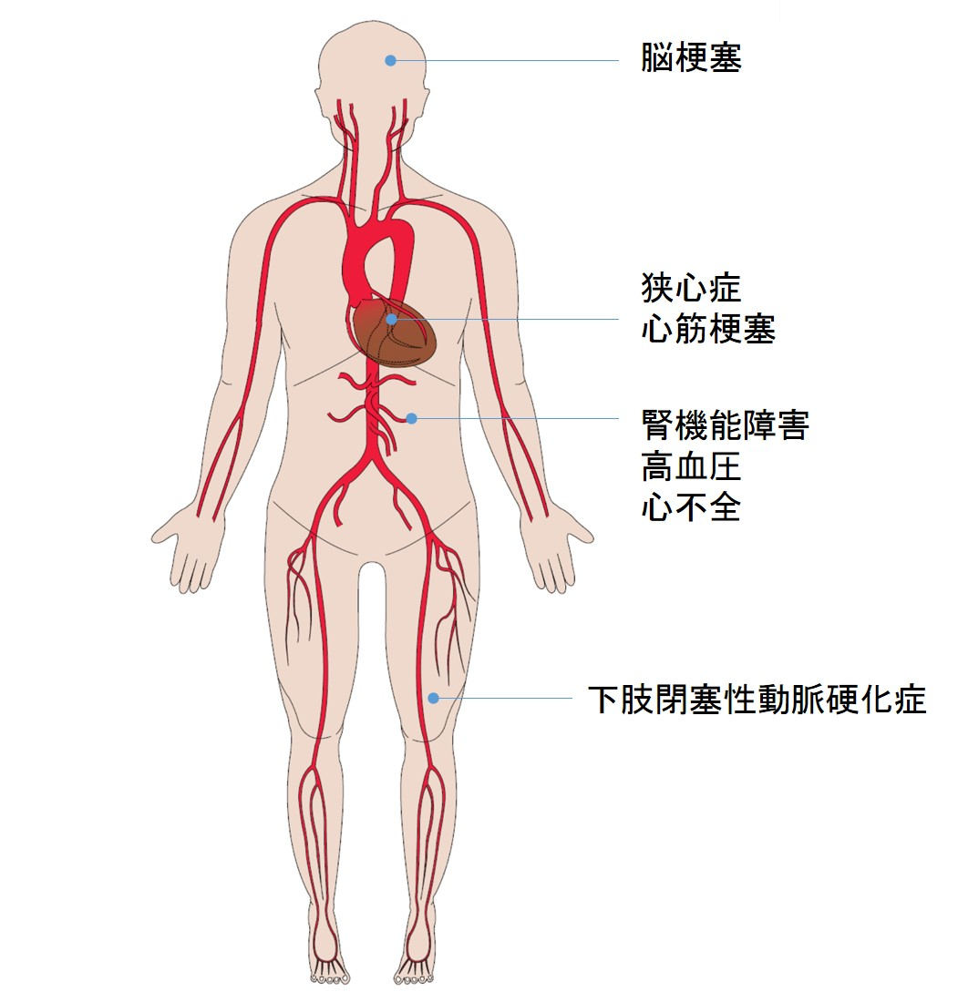 下肢閉塞性動脈硬化症とは | 社...