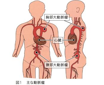 大動脈瘤   社会医療法人大道会 森之宮病院