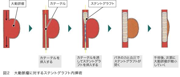 EVAR (Endo-Vascular Aortic Repair)の適応条件 -